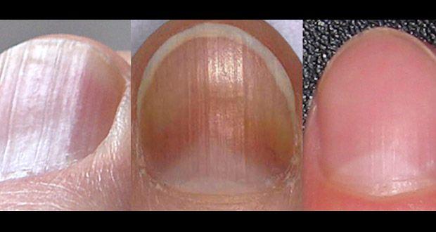 8 Problèmes de santé détectable sur vos ongles