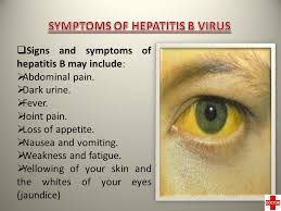 Image result for hepatitis b signs and symptoms