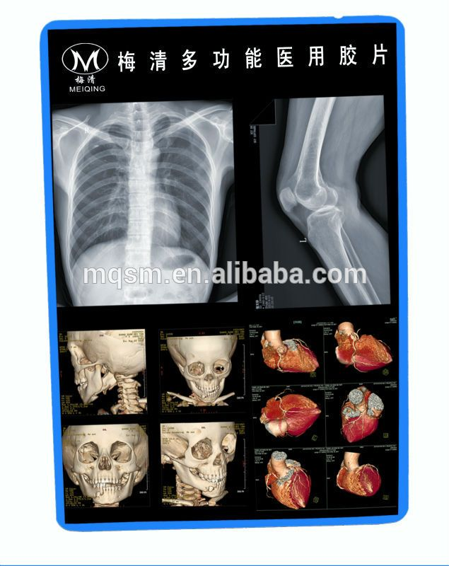 Meiqing fuji finepix x100 #Fuji_X100, #Accessories