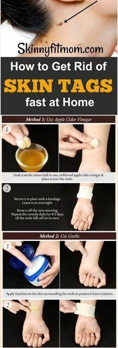 So entfernen Sie Hautmarken schnell: 8 Hausmittel, die wirklich funktionieren – helpful tips