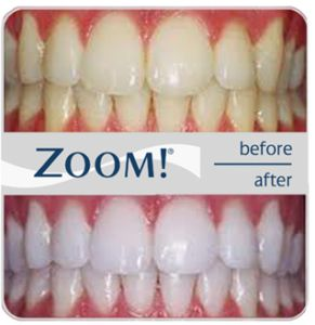 What is Zoom Whitening for your Teeth and is it worth it?