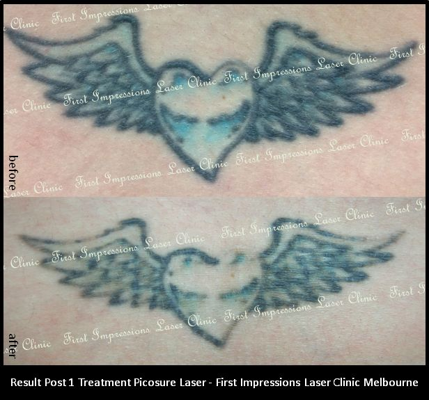 Laser Tattoo Removal on wings and heart - post treatment one.  The customer has just come in for her second treatment - she is very happy with the results so far!  Call 0427 731 176 for a free consultation. #tattoo, #tattooregret, #tattooremoval, #tattooremovalmelbourne, #picosure, #picosurelaser, #beauty, #fashion, #tattoo, #tattoos