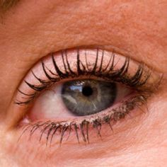 How To Cure Dry Eyes Naturally