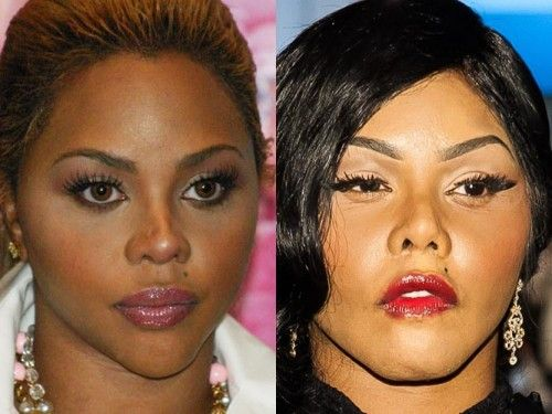 Lil' Kim before and after plastic surgery-leekrausonline.com