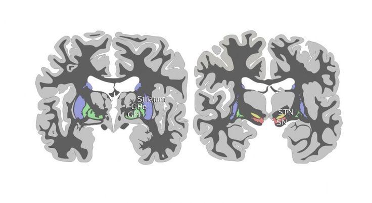 La sustancia negra es una de las partes del cerebro pertenecientes a los ganglios basales. Sus funciones tienen que ver con el movimiento y la motivación.