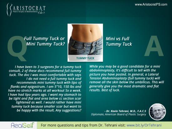 Q: Full Tummy Tuck or Mini Tummy Tuck?    Read more at http://www.AristocratPS.com/qa-full-tummy-tuck-or-mini-tummy-tuck/