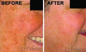 Advanced Natural Resurfacing Treatment Mask