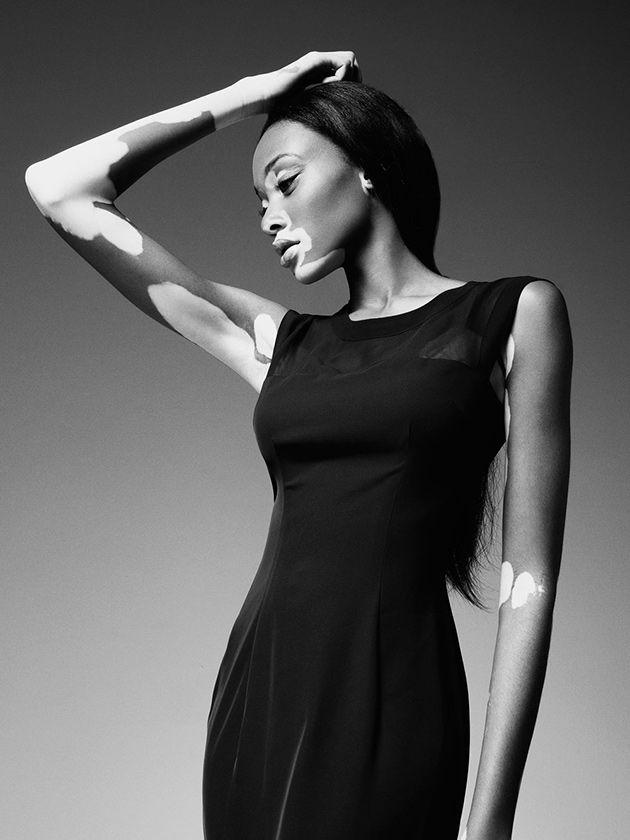 Modelo com vitiligo pra quebrar os tabus da moda   Lilian Pacce