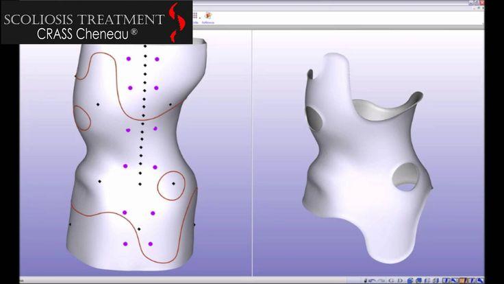 ΝΕΑ θεραπεία σκολίωσης | Scoliosis Treatment Crass Cheneau®