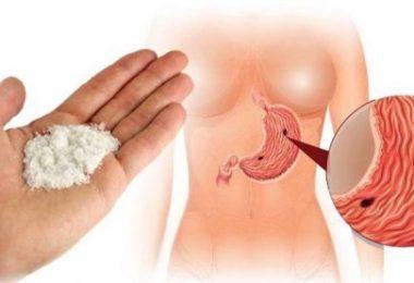 Si vous remarquez que vous êtes ballonné de manière anormale il est important de savoir que cela peut être la cause d'une bactérie intestinale que l'on appelle Helicobacter pylori. Dans cet article nous vous proposons de découvrir une solution pour éliminer cette bactérie ainsi que pour faire dégonfler ventre ventre rapidement. Les intestins font partie …