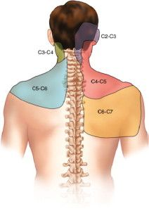 Pain patterns from damage to the facet joints of the cervical spine. This is the most common source of chronic neck pain from whiplash.