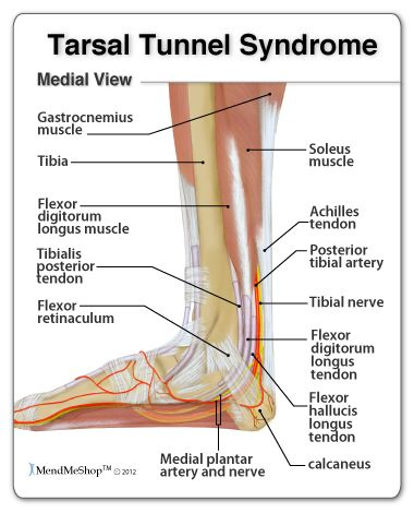 Tarsal Tunnel Syndrome (TTS) causes pain in the foot, ankle, and toes.