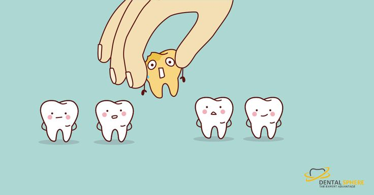 Do you know what causes Tooth Decay? And how to prevent it? If not, then you are on the right page.  #ToothDecay #DentistInPune
