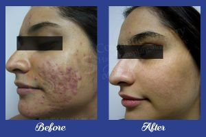 A professional doctor is the first step towards the successful treatment. Visit VJ clinics and get the best treatment at low-cost with assured results. Our clinic is opffering these services from last 10 years and the top clinic in india. You can get various servioces of cosmetic surgery with excellent results.