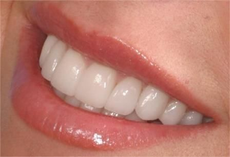 Remedii naturale pentru problemele gingiilor - Viata in verde viu