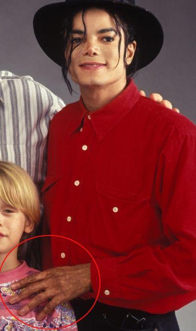 Michael Jackson vitiligo proof