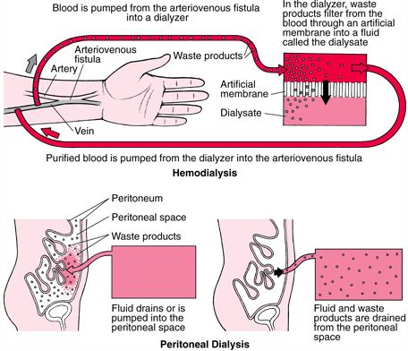 Hemodialysis compared to Peritoneal Dialysis I have done  both and PD was by far the better choice for me.