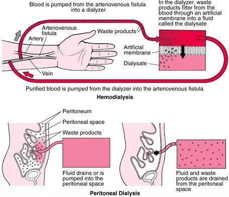 Hemodialysis compared to Peritoneal Dialysis