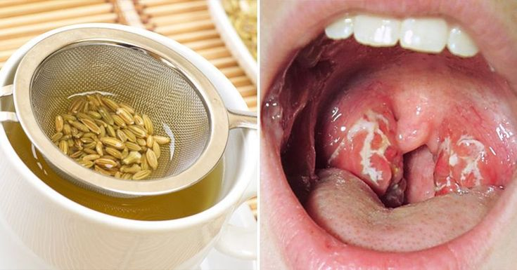Strep Throat- 21 Natural Remedies