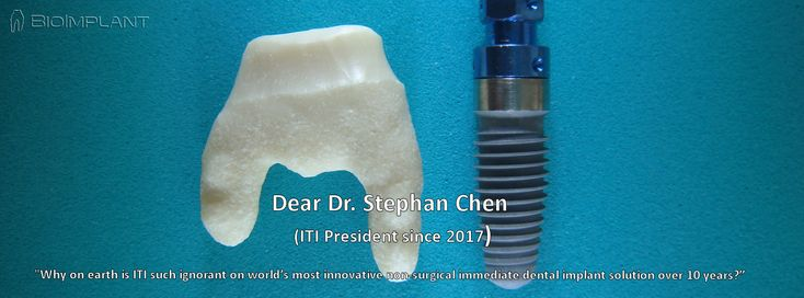 "***IMMEDIATE UPPER MOLAR IMPLANT REPLACING SEPARATED DECAYED ROOTS - 4 YEARS FOLLOW-UP.***   Dedicated to the Straumann driven over 10 years unscientific ignorant, ITI drill and fill butchery organisation.   Dear ITI: ""Ignorance is the last thing we need in serious dental implant science."""