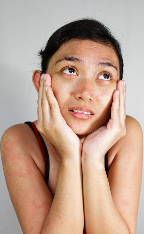 Rosacea can affect your eyes too - it's called ocular rosacea. Get the facts here.Dry eye syndrome, which often accompanies rosacea, should be treated with non-preserved artificial tears (eye drops) as often as four times daily or more. A home humidifier also may help.