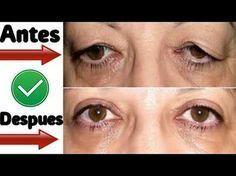 Este remedio con vinagre está volviendo loca a todas las mujeres mira de que se trata!!! - YouTube