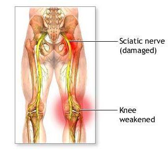 Natural Cure For Nerve Damage