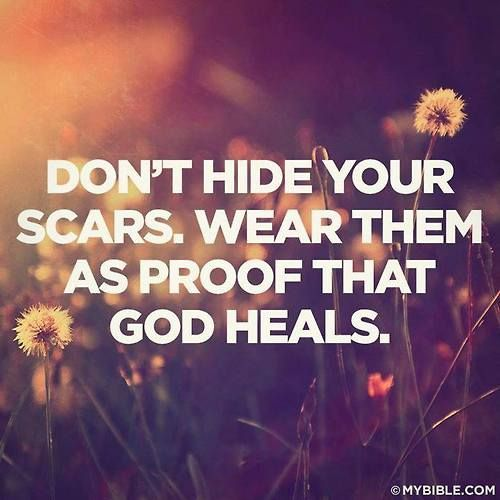 We all have scars. It's what God does with them that makes them beautiful :)