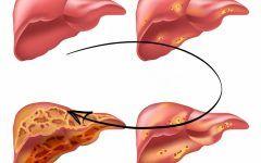 As 3 Bebidas Detox Para Limpar o Fígado