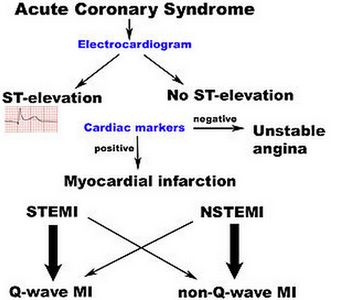 Acute Coronary Syndrome pathophysiology