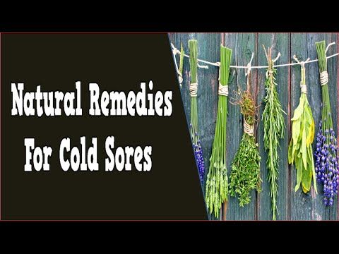 how to get rid of cold sores overnight home remedies