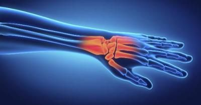 Chronic Inflammatory Demyelinating Polyneuropathy Information Including Symptoms, Diagnosis, Treatment, Causes, Videos,…