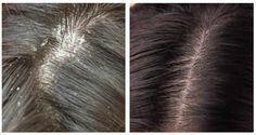 Les solutions naturelles les plus efficaces pour se débarrasser des pellicules et des démangeaisons du cuir chevelu