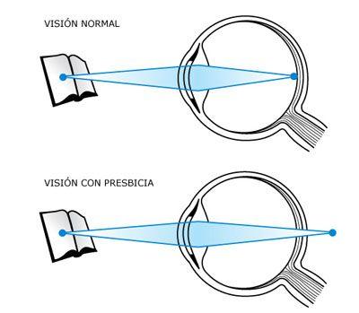 Conoce la diferencia entre una visión normal de otra con presbicia. Ricardo Bittelman Saporta
