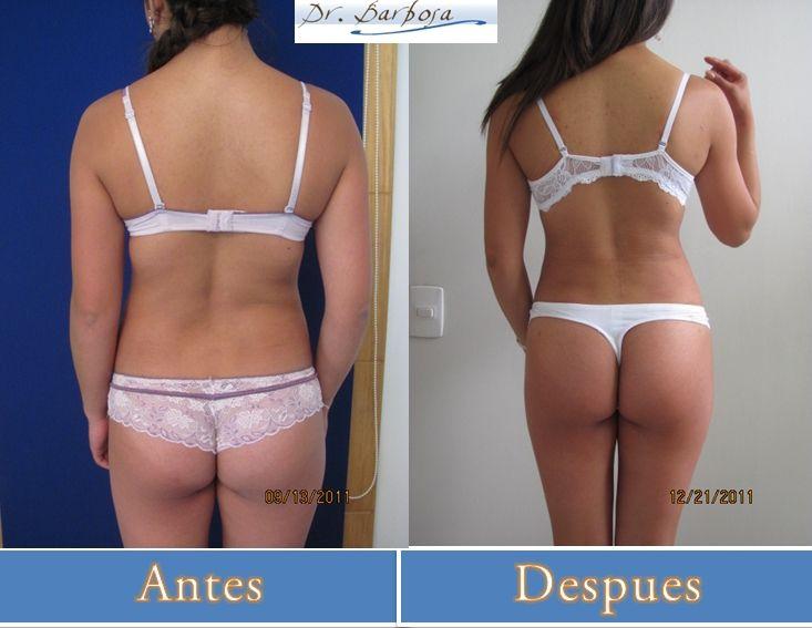 fotos de antes y despues de una lipectomia y tummy tuck en bogota #lipectomia