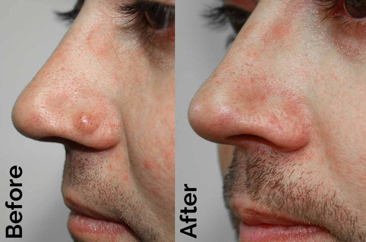 wart on nose treatment