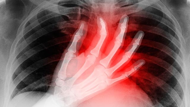 Heart Attacks in Young Women Can Be Harder to Detect. Read & watch more about it. #women #health