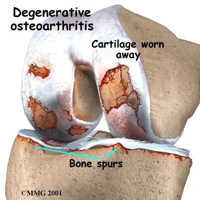 knee spurs | Meniscus Tears and Arthritis – Just because we have a scalpel ….