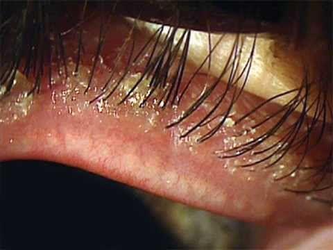 Do eyelashes grow back - YouTube
