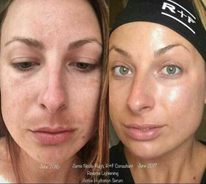 The Ultimate At Home Skincare Routine To Fix Uneven Skin Tone Remove Dark Spots Brighten Your Complexion Rev Rodan And Fields Acne Dark Spots Skin Bleaching