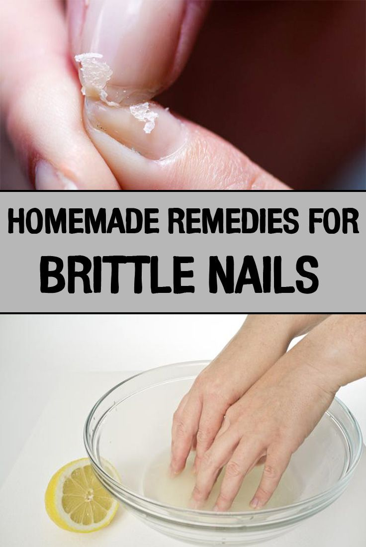 Homemade Remedies for Brittle Nails - iwomenhacks