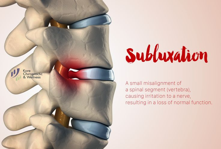 Subluxation- A small misalignment of a spinal segment (vertebra), causing irritation to a nerve, resulting in a loss of function. They may be small but they can cause BIG problems!