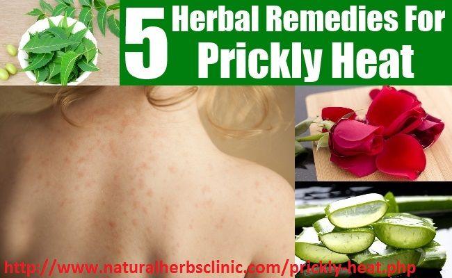 Heat Rash Symptoms | Prickly Heat Rash Treatment - Natural Herbs Clinic