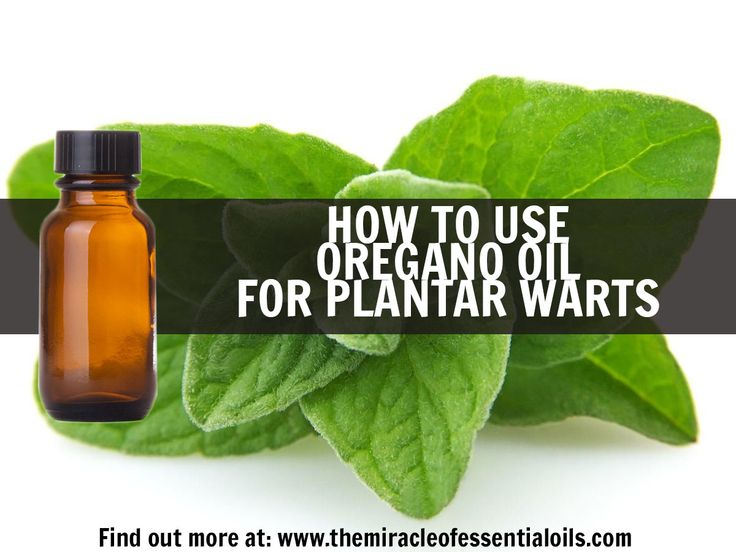 Plantar warts are painful, contagious and a nuisance to deal with. But the good news is they are 100% treatable. Learn how to use oregano oil for plantar warts for the fastest, most effective treatment.