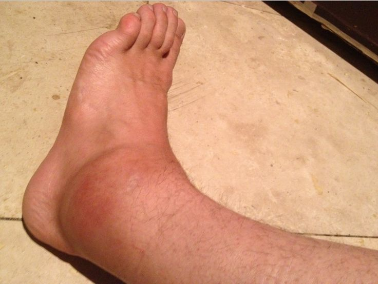 Home Remedies for Sprained Ankle   Ankle sprain treatment