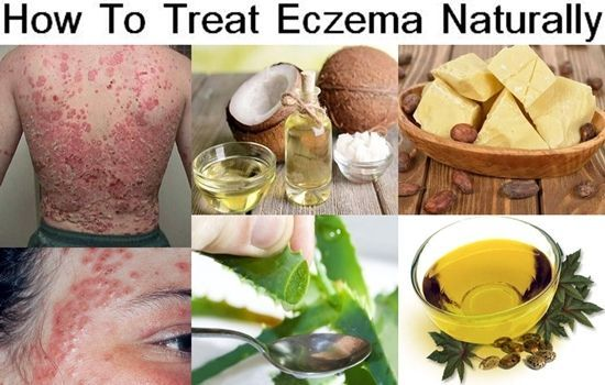 How To Treat Eczema Naturally - Eczema is a condition that affects many people of different ages and races which causes discomfort and annoyance. Doctors often prescribe steroidal creams which helps to treat the condition fast but it permanently, unfortunately the conditions keeps on coming back besides the several side... - Eczema, How To, How To Treat Eczema Naturally, Treat Eczema, Treat Eczema Naturally - Health, health care, How To, skin