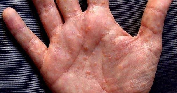 fe57393ea1e7a554b9c5c002f7ce4418 - How To Get Rid Of Small Itchy Bumps On Hands