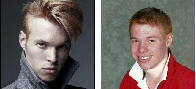 Τον κορόιδευαν για τα κόκκινά του μαλλιά και χάρη σε αυτά έγινε ένα από τα κορυφαία μοντέλα της Vogue [εικόνες]