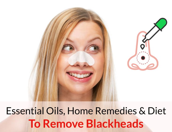 Essential Oils, Home Remedies & Diet To Get Rid Of Blackheads