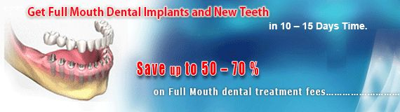 Delhi Dental Center will need normally four to five visits for #full_mouth_dental_implant with dental bridge procedure in India. http://goo.gl/Dy9gBB